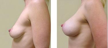 naturalne powieklszanie piersi