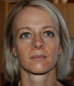 Dermatitis perioralis3